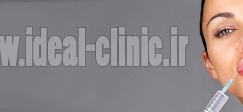 تزریق ژل هیالورونیک در لب