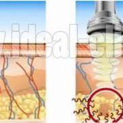 مقایسه کویتیشن و کرایولیپولیز