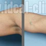 ایا کرایولیپولیز بر سطح لیپید کبدی تاثیری دارد