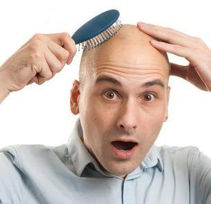 پیوند موی طبیعی